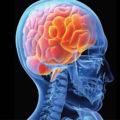 Мозг Человека 3 серия